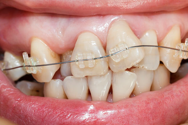 Braces to correct excessive crowding